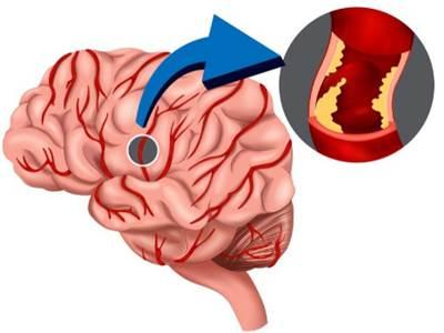 Cara Mengobati Gumpalan Darah Di Kepala