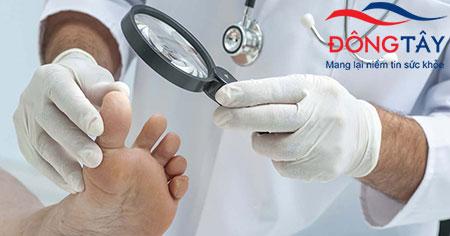 Người bệnh cần đi khám để phát hiện biến chứng tiểu đường ở chân