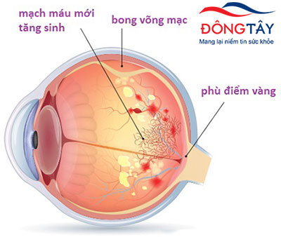 Biến chứng mắt của bệnh tiểu đường – Đâu mới là giải pháp chữa trị hiệu quả?
