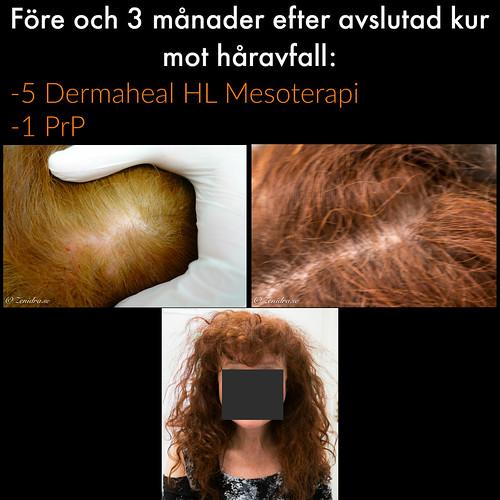 Behandling mot håravfall Malmö