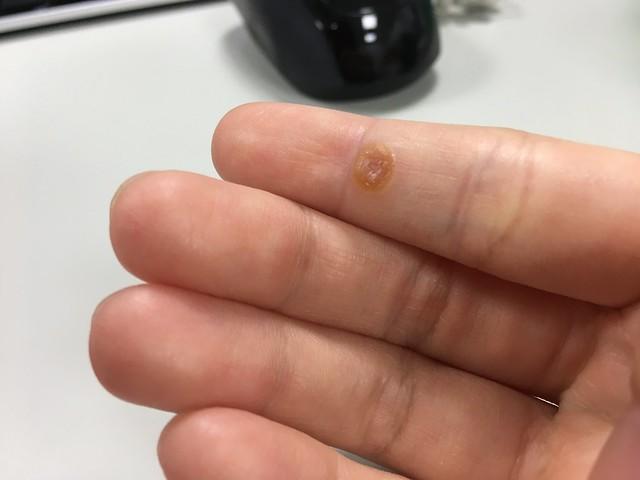 病毒疣的水泡自行吸收了