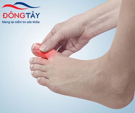 Biến chứng tiểu đường ở chân khiến cho vết thương, vết loét lâu lành và nhiễm trùng, hoại tử