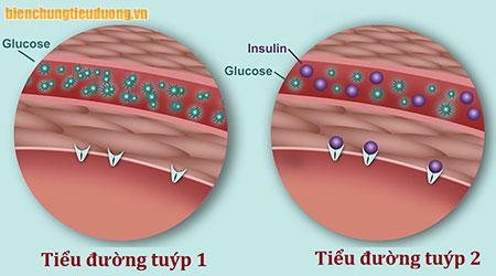 Sự khác nhau giữa bệnh tiểu đường tuýp 1 và tuýp 2.