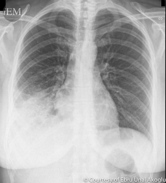 Respiratory Distress International Emergency Medicine