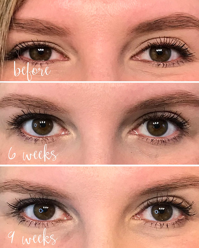 lash boost weeks before - 9 weeks