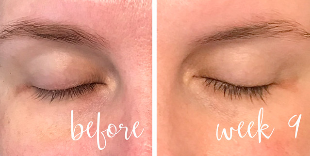before and week 9 lashes no mascara