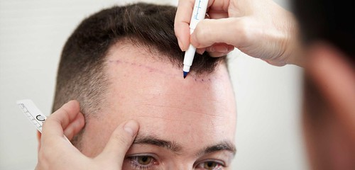 Questions that a person considering a Hair Transplant may have
