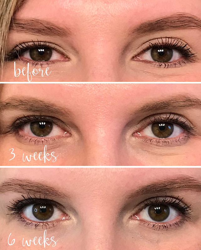 lash boost weeks before - 6 weeks