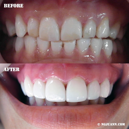 Porcelain Veneers done in Bangkok