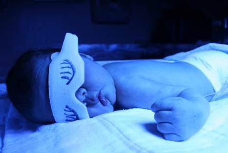 Cara Mengobati Bilirubin Tinggi Pada Bayi