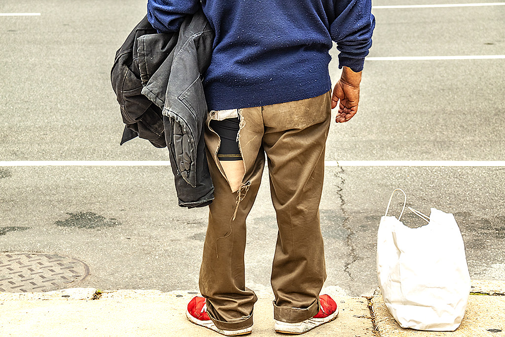 Man with a large hole in his pants--Center City