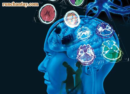 Sự tổn thương não bộ có thể làm xuất hiện hội chứng Parkinson