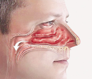 Obat Herbal Kanker Nasofaring Yang Ampuh Tanpa Operasi, 100% Alami