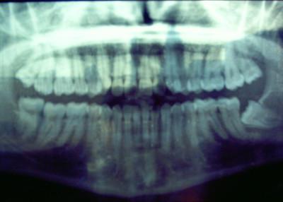 Mis dientes