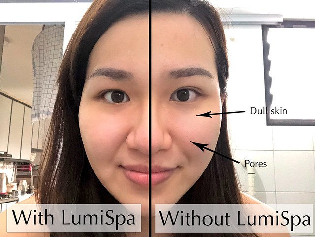 AgeLOC LumiSpa before-after