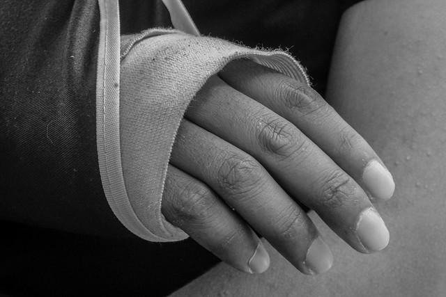 Accidentes en la vía, cicatrices en la vida.