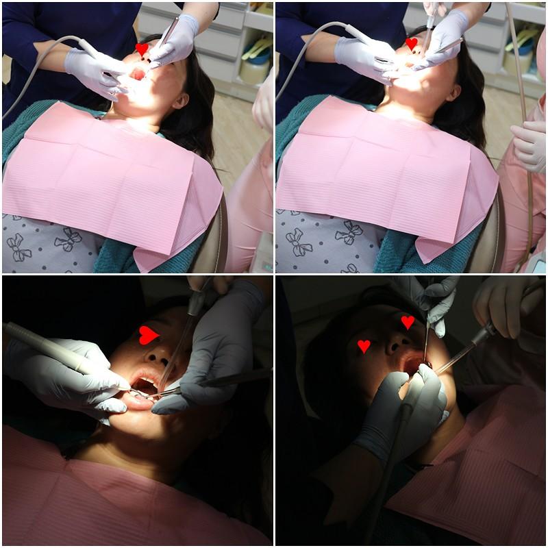 絕美牙醫診所 (30)