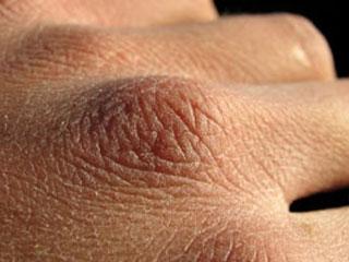 manos resecas - smsafemode