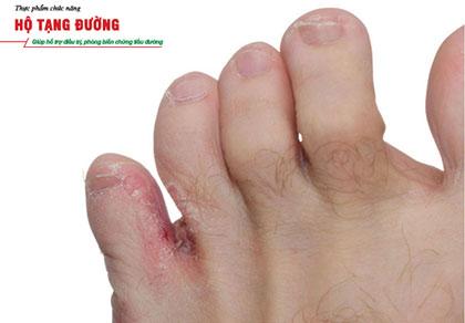 Những biến chứng tiểu đường ở chân thường gặp và cách phòng ngừa