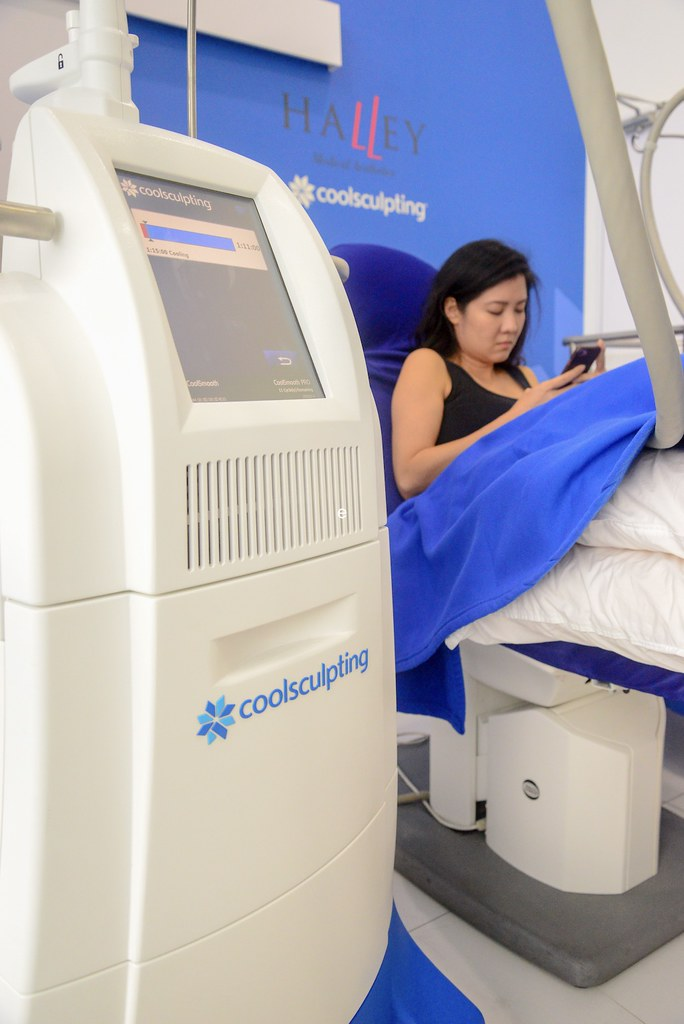 CoolSculpting_treatment_cycle