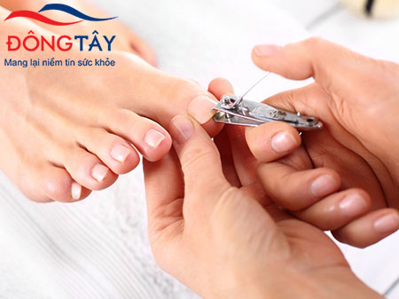 Cắt móng chân giúp phòng ngừa biến chứng bàn chân của bệnh tiểu đường