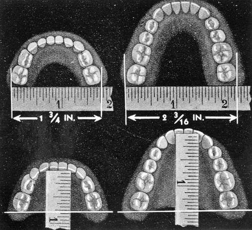 /Dental Diagram, Copied for Health Department