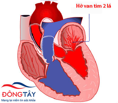 Van tim bị hở khiến một phần lượng máu trào ngược lên buồng tim trước