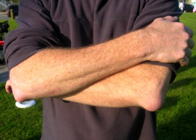 Опухоли и шишки на руке: причины и лечение