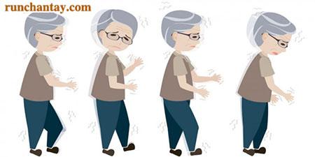 Biểu hiện chậm vận động thường gặp ở người bệnh Parkinson
