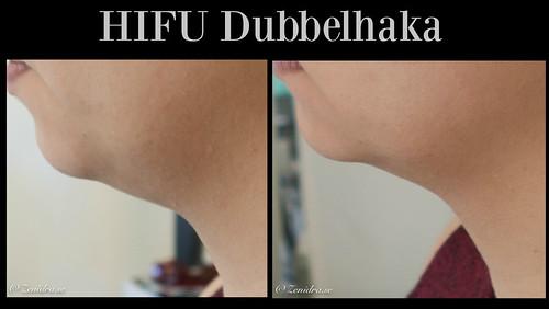 HIFU Dubbelhaka