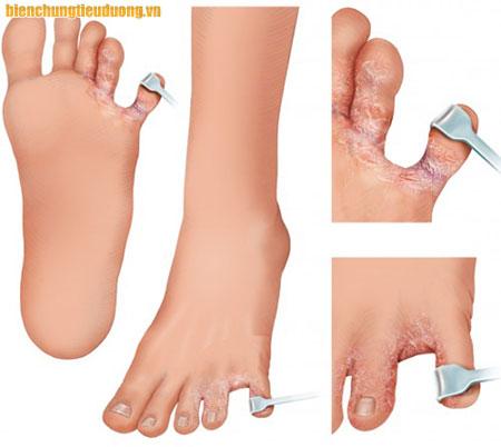 Athlete's foot – một trong những biến chứng bàn chân của bệnh tiểu đường