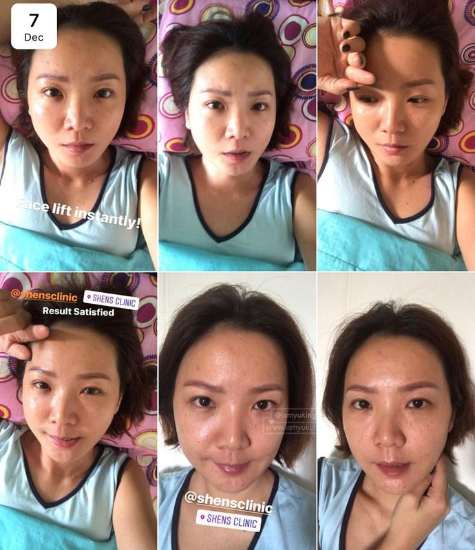 Shens Clinic03Korean 3D V-Contour Thread Lift & Glowing Skin Booster