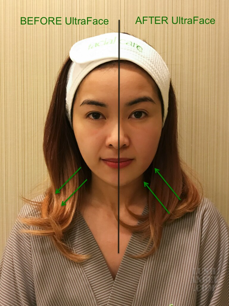facial-care-ultraface-result
