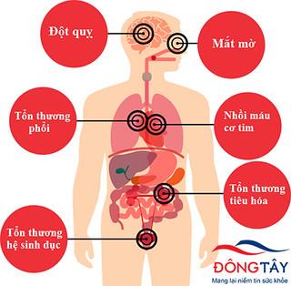 Glucose trong máu cao có thể dẫn tới nhiều biến chứng nguy hiểm