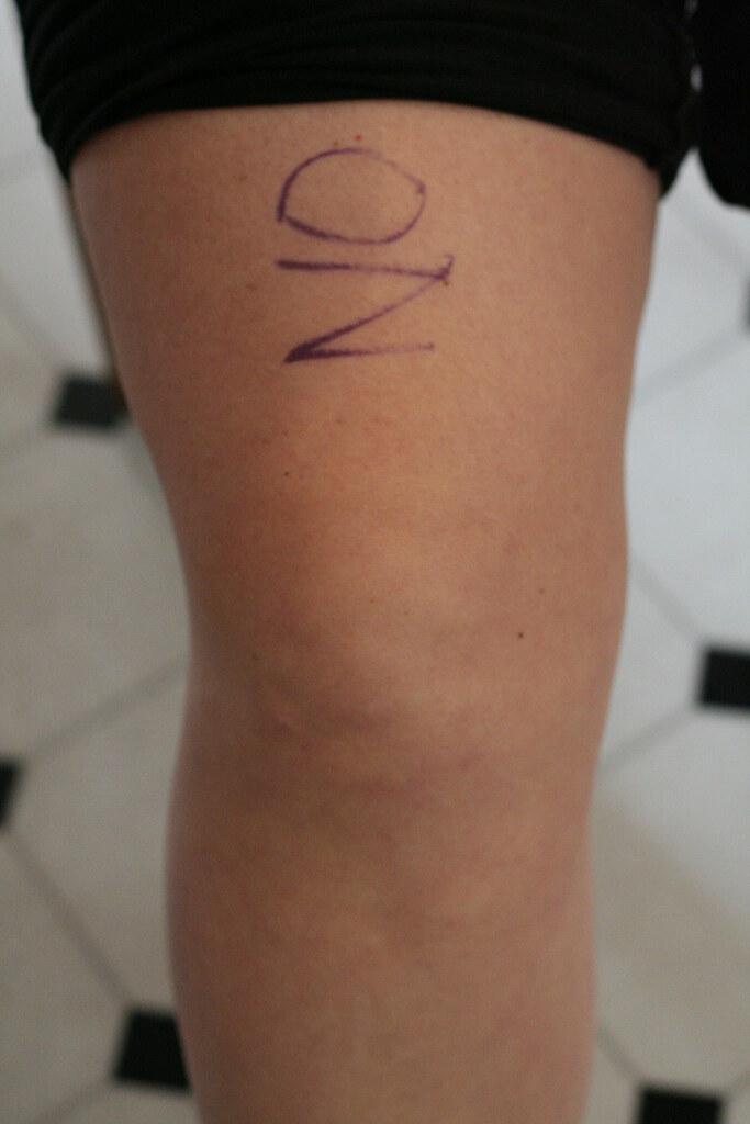 Knee surgery - 11/17/06